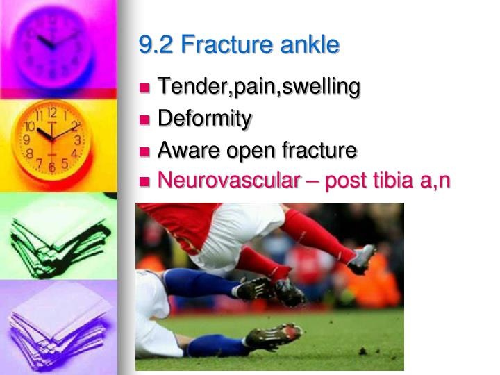 9.2 Fracture ankle