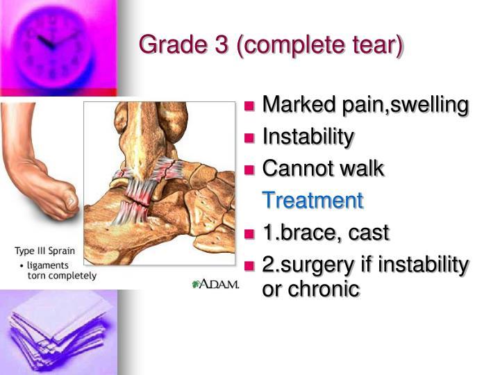 Grade 3 (complete tear)