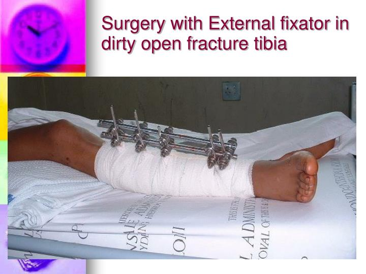 Surgery with External fixator in dirty open fracture tibia