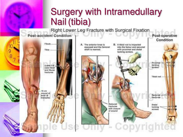 Surgery with Intramedullary Nail