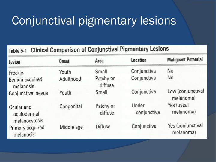 Conjunctival pigmentary lesions