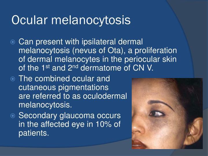 Ocular melanocytosis