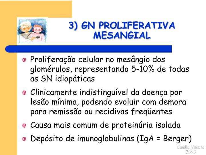 3) GN PROLIFERATIVA MESANGIAL