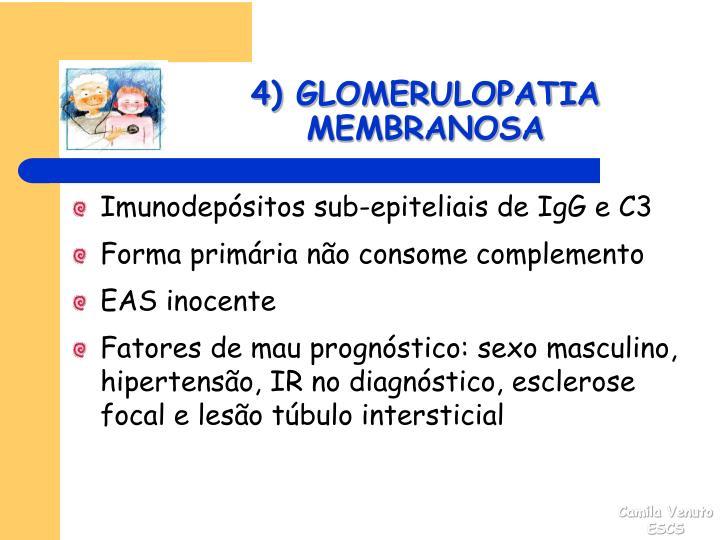 4) GLOMERULOPATIA MEMBRANOSA