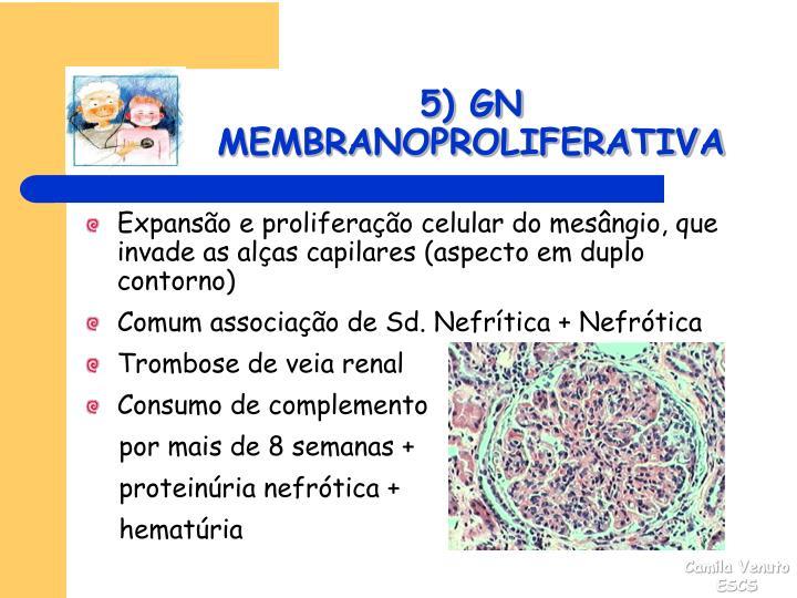 5) GN MEMBRANOPROLIFERATIVA