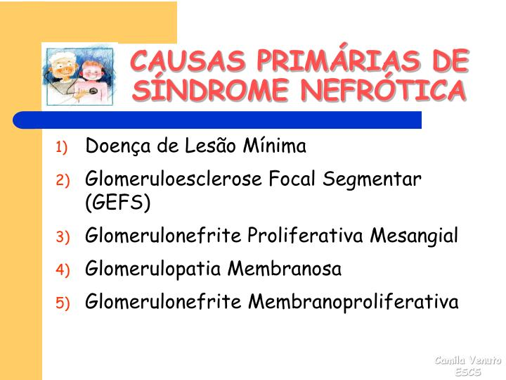 CAUSAS PRIMÁRIAS DE SÍNDROME NEFRÓTICA