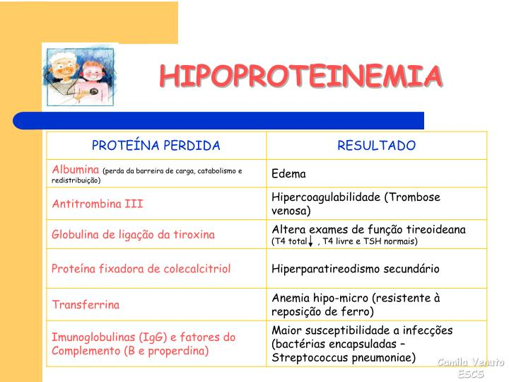 HIPOPROTEINEMIA