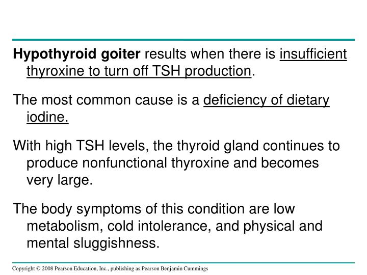 Hypothyroid goiter