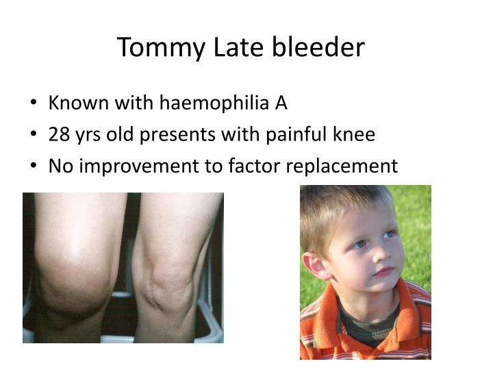 Tommy Late bleeder