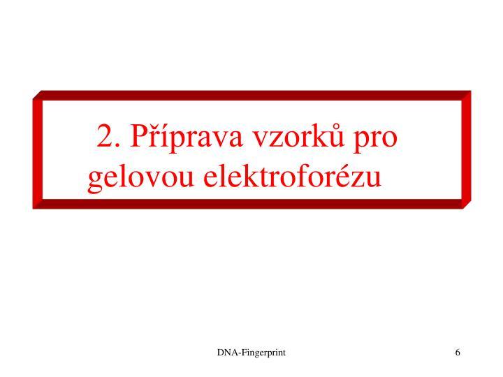 2. Příprava vzorků pro gelovou elektroforézu