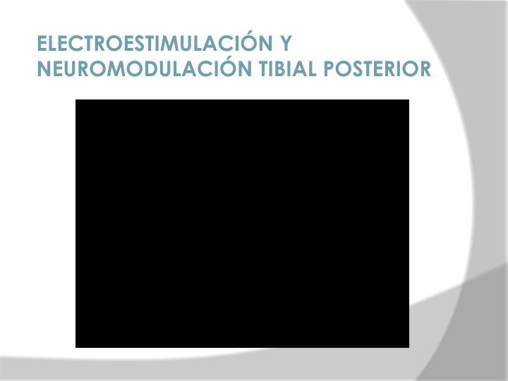 ELECTROESTIMULACIÓN Y NEUROMODULACIÓN TIBIAL POSTERIOR