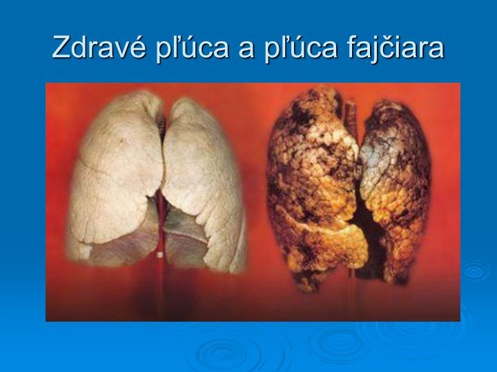 Zdravé pľúca a pľúca fajčiara