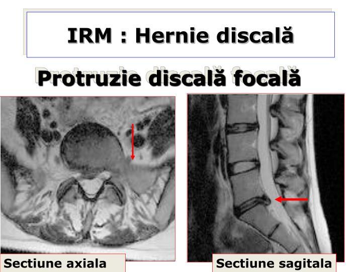 IRM : Hernie discală