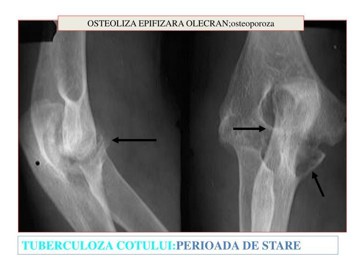 OSTEOLIZA EPIFIZARA OLECRAN;osteoporoza