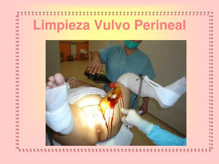 Limpieza Vulvo Perineal
