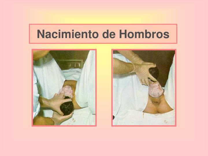 Nacimiento de Hombros