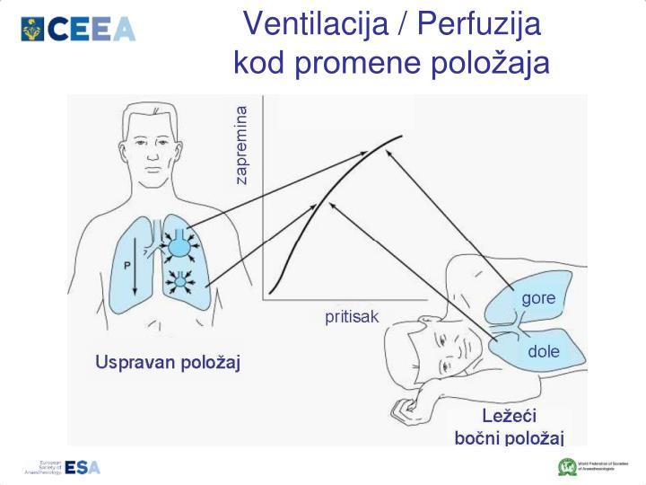 Ventilacija / Perfuzija