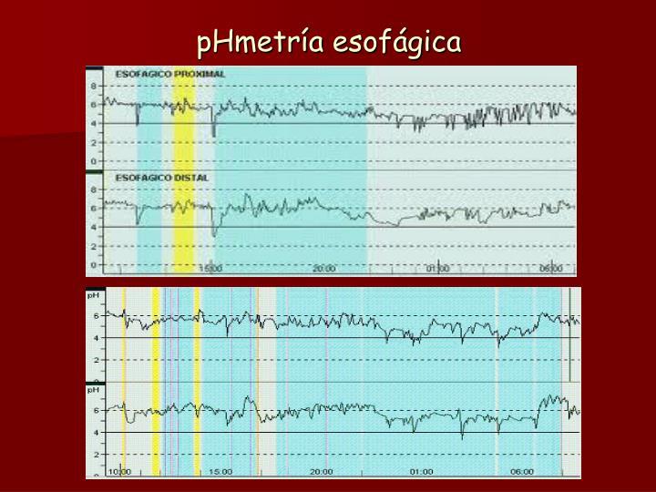 pHmetría
