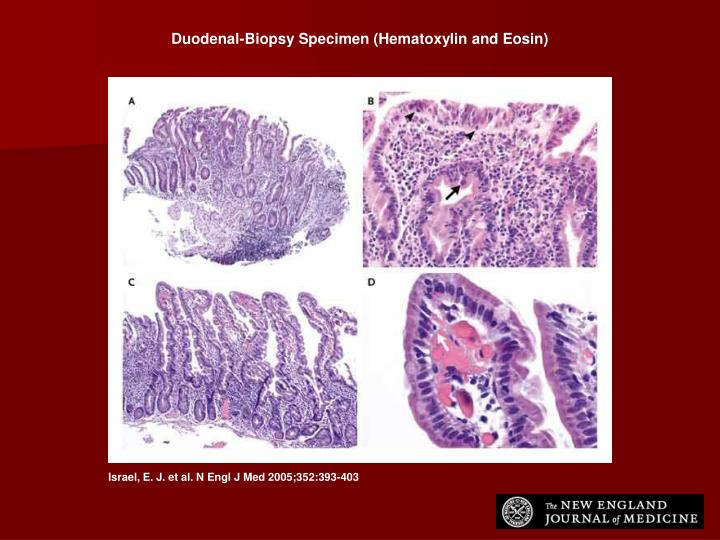 Duodenal-Biopsy Specimen (Hematoxylin and Eosin)