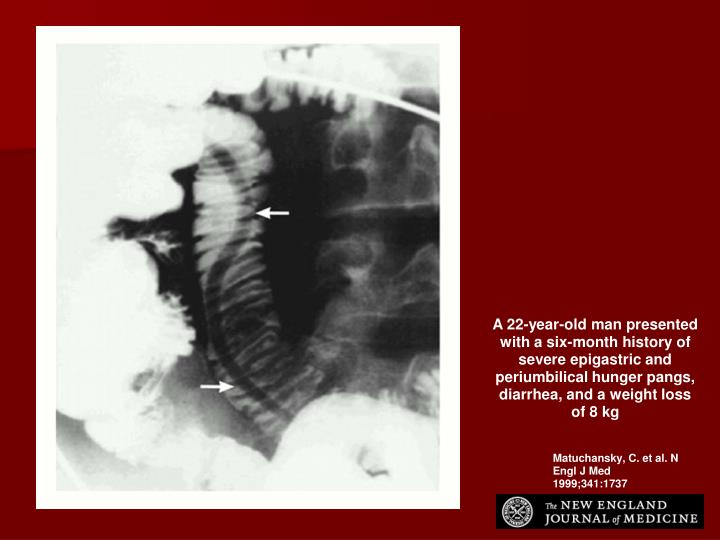 A 22-year-old man presented with a six-month history of severe epigastric and periumbilical hunger pangs, diarrhea, and a weight loss of 8 kg