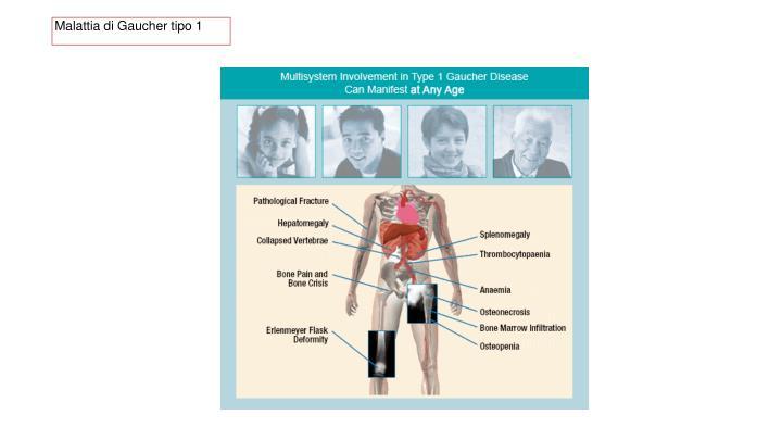Malattia di Gaucher tipo 1
