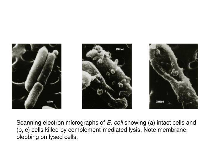 Scanning electron micrographs of