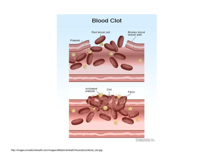 http://images.emedicinehealth.com/images/eMedicineHealth/illustrations/blood_clot.jpg