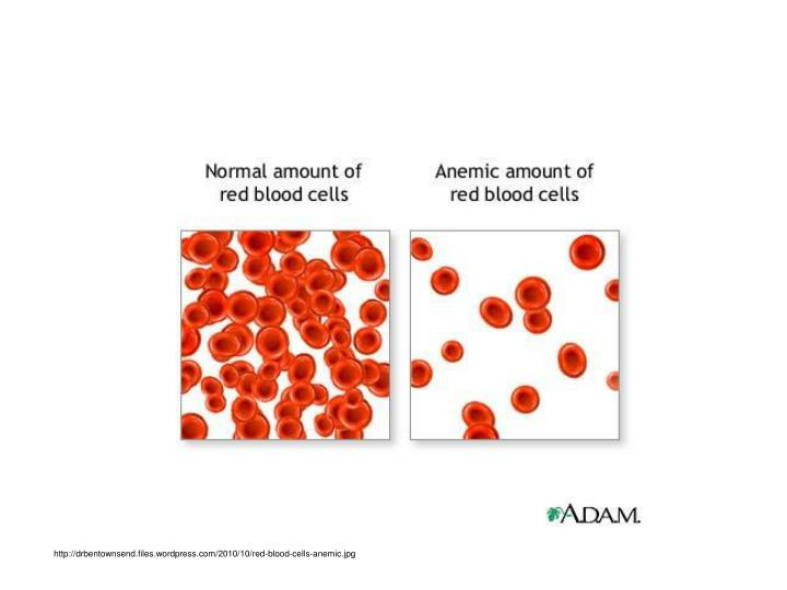 http://drbentownsend.files.wordpress.com/2010/10/red-blood-cells-anemic.jpg