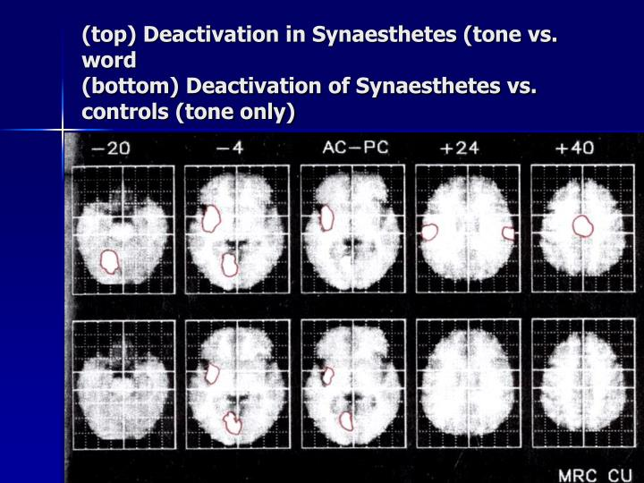 (top) Deactivation in Synaesthetes (tone vs. word