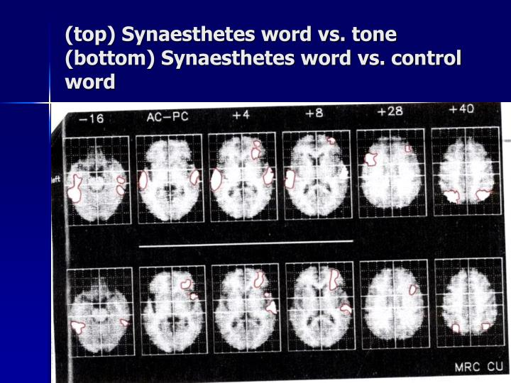 (top) Synaesthetes word vs. tone