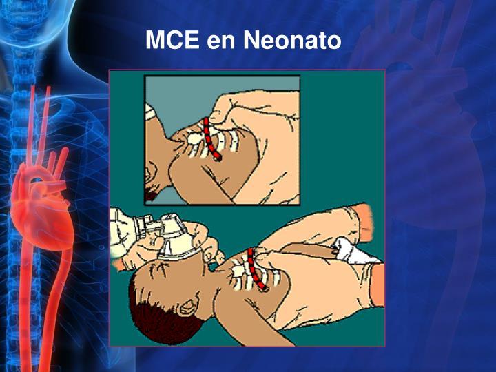 MCE en Neonato
