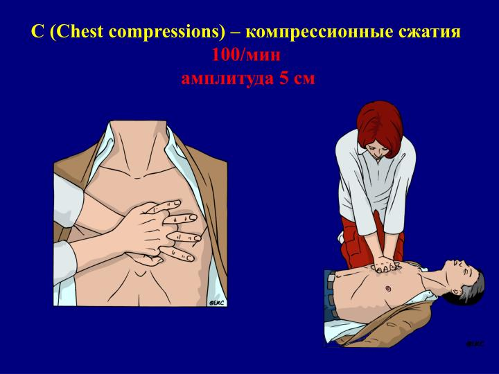 (Chest compressions)