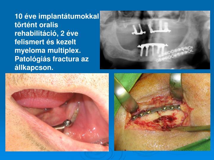 10 éve implantátumokkal történt oralis rehabilitáció, 2 éve felismert és kezelt myeloma multiplex. Patológiás fractura az állkapcson.