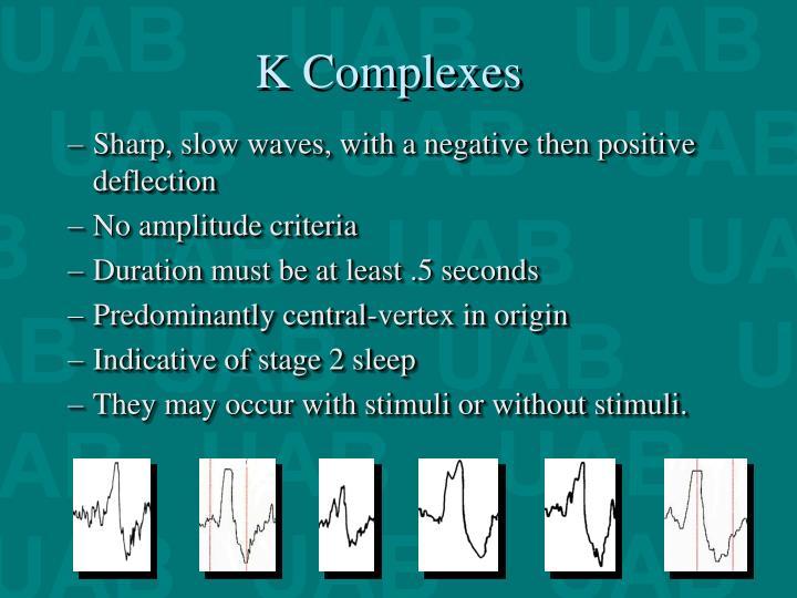 K Complexes