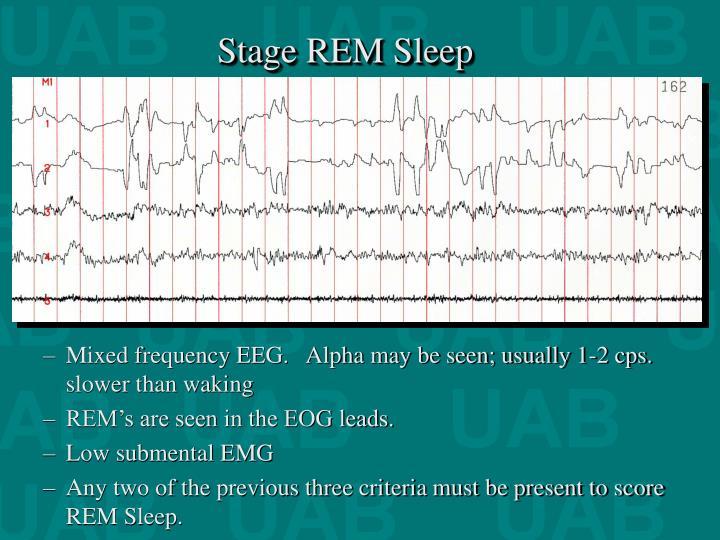 Stage REM Sleep