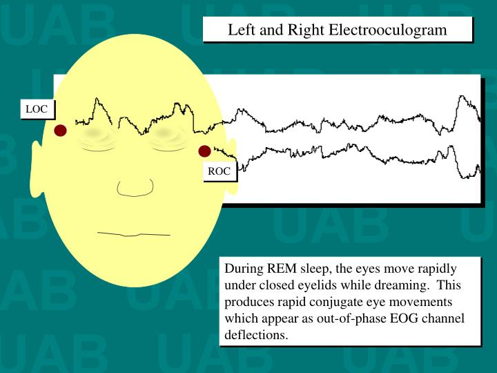 Left and Right Electrooculogram