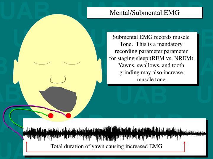 Mental/Submental EMG