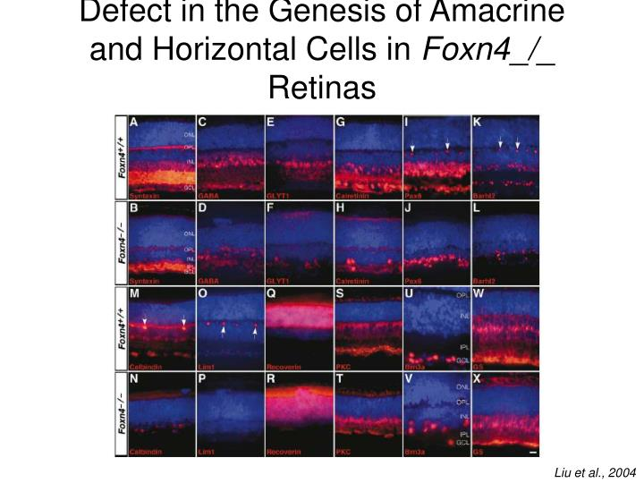 Defect in the Genesis of Amacrine and Horizontal Cells in