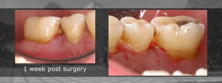 1 week post surgery