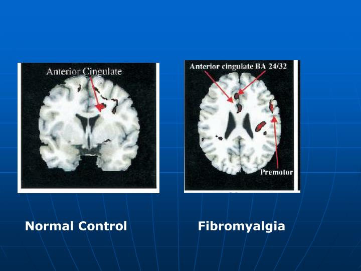 Normal Control                 Fibromyalgia
