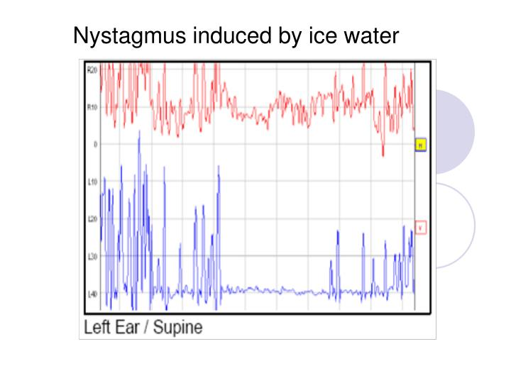 Nystagmus induced by ice water