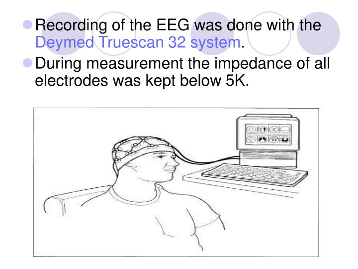 Recording of the EEG was done with the