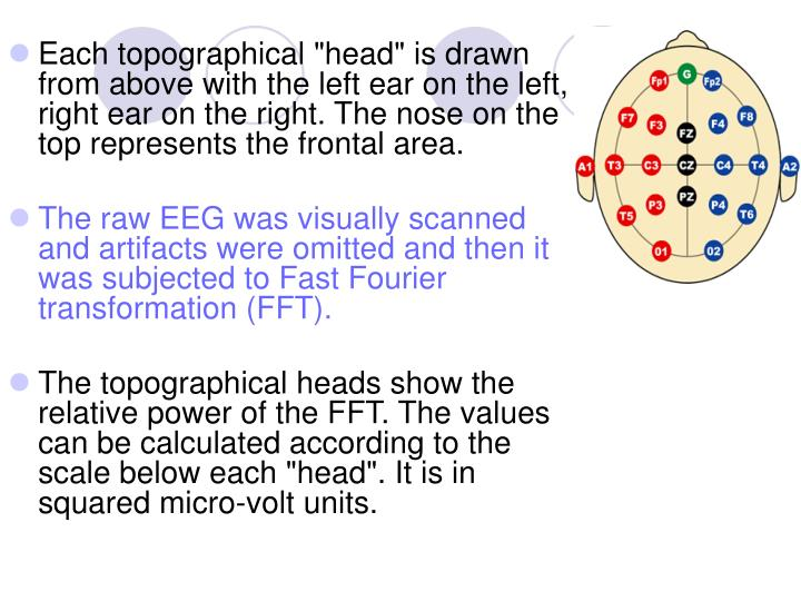 "Each topographical ""head"" is drawn from above with the left ear on the left, right ear on the right. The nose on the top represents the frontal area."