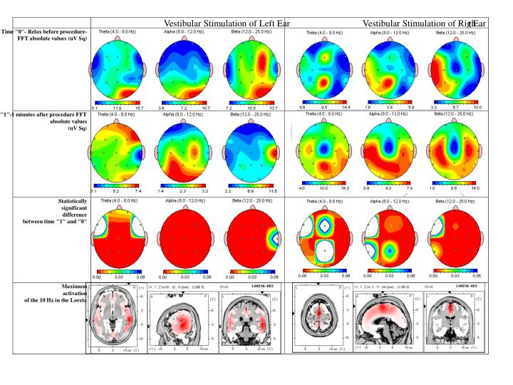 Vestibular Stimulation of Left Ear
