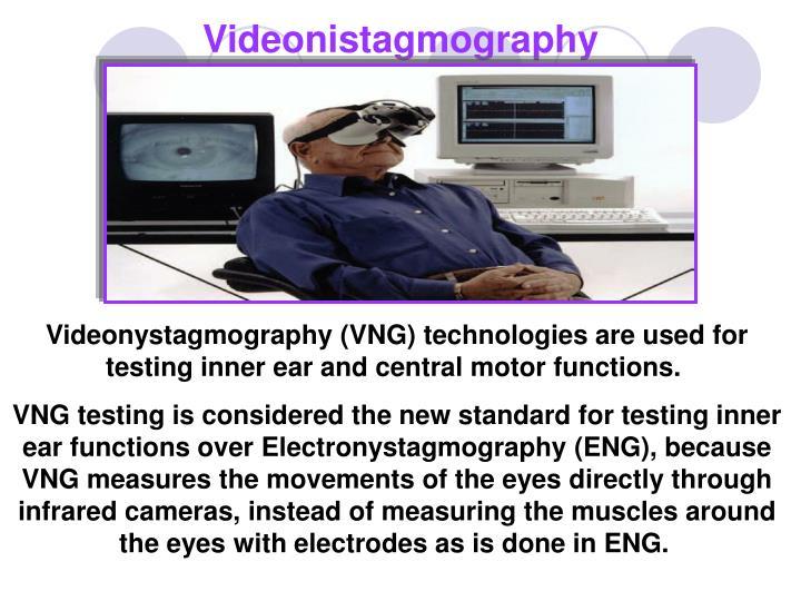 Videonistagmography
