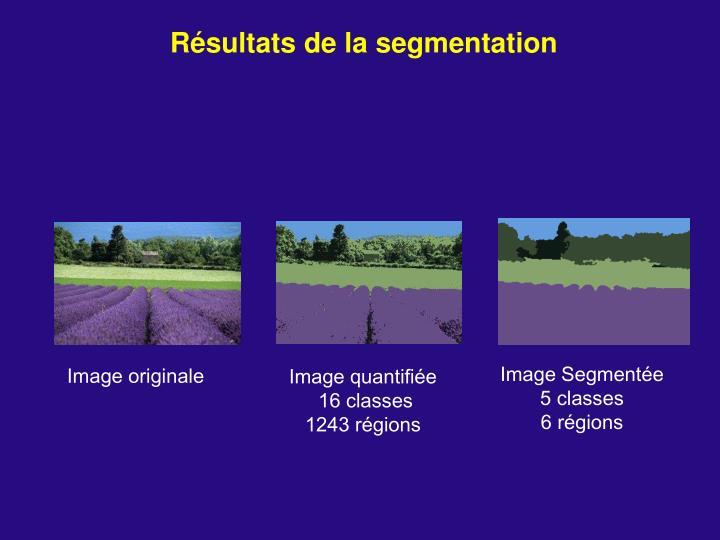 Résultats de la segmentation