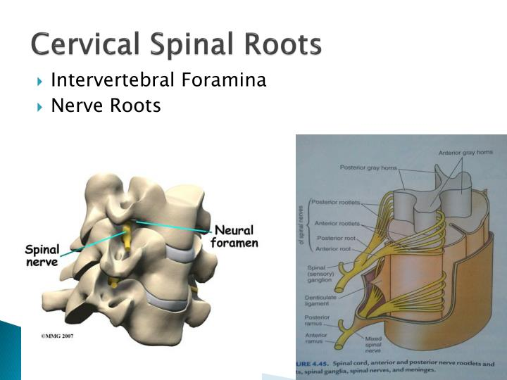 PPT - Cervical Radiculopathy PowerPoint Presentation - ID ...