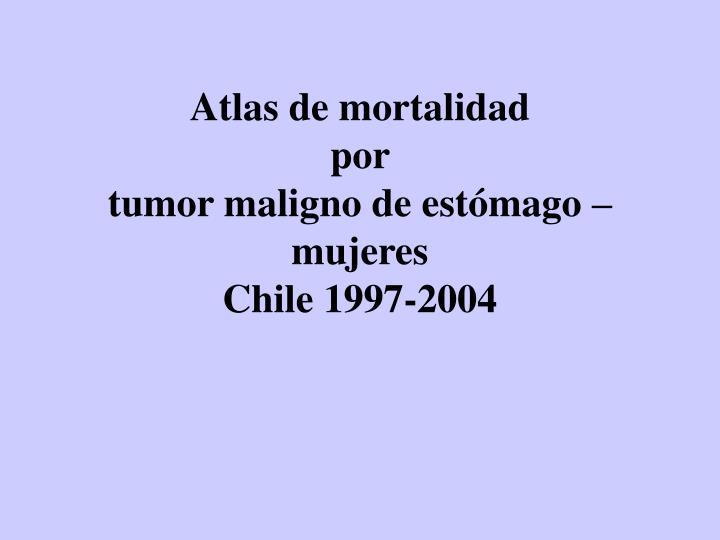 Atlas de mortalidad