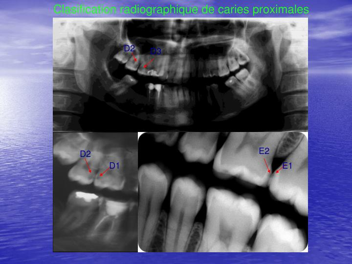 Clasification radiographique de caries proximales