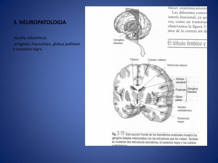 3. NEUROPATOLOGIA